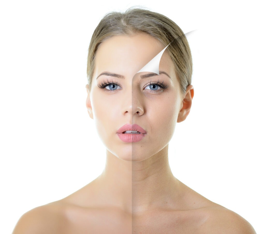 kleresca-trattamento-medicina-estetica