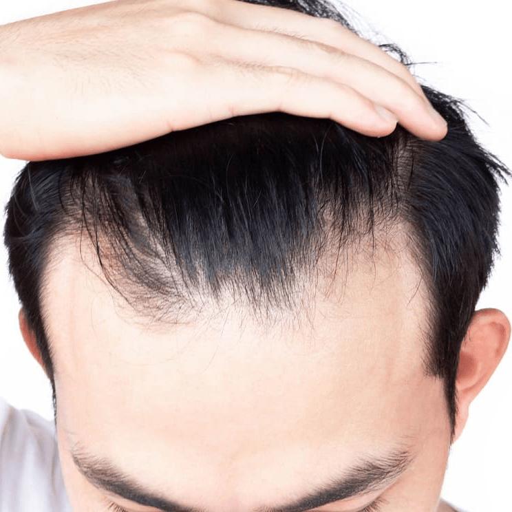 trapianto di capelli low cost