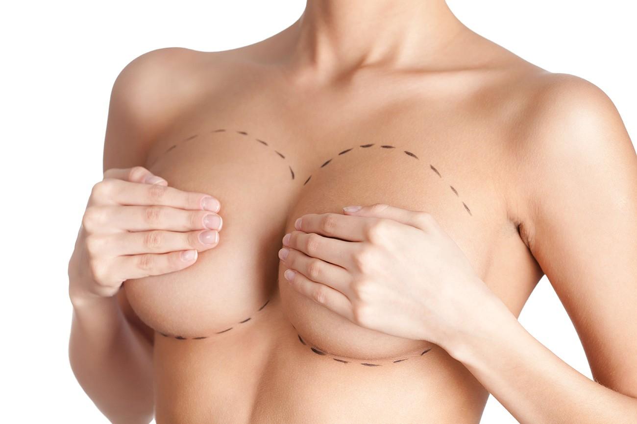 tette-seno-intervento